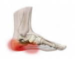 The Painful Matter of Plantar Fasciitis